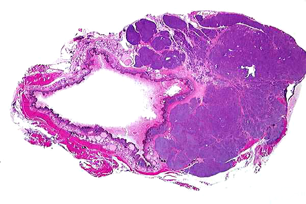 What causes canine anal sac carcinoma