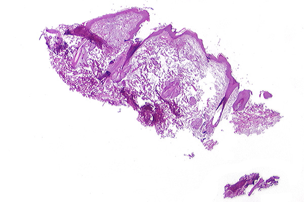 M15 - Cutaneous mucinosis - haired skin - dog