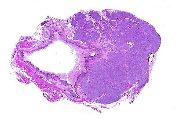 Parry NM. Anal sacgland carcinoma in a cat. Vet Pathol . 2006;43 ...