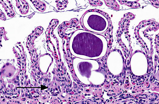 epithelial hyperplasia #10