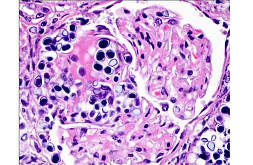 valtrex dosage shingles treatment