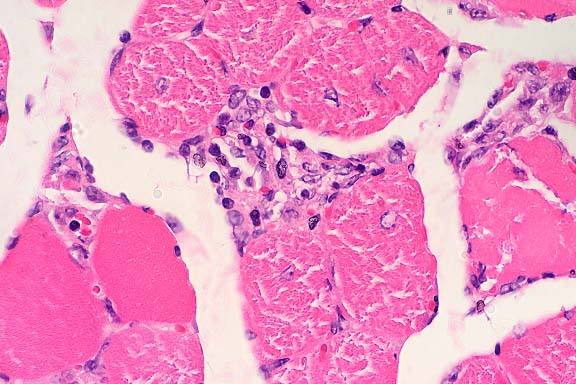 Globoid Cells In some areas tumor cells formOnion Skin Lysosome