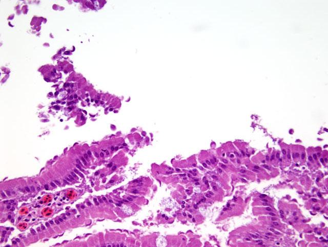 giardia colon histology a paraziták elleni küzdelem módjai